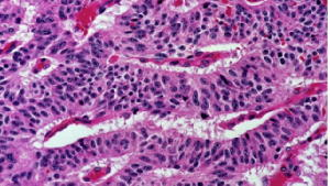 300x1691492098744021Typical_carcinoid_tumor_of_the_lung__trabecular_pattern