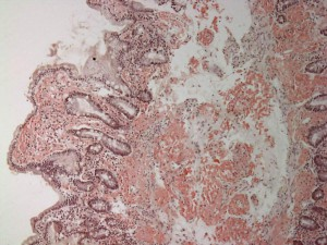 Small_bowel_duodenum_with_amyloid_deposition_congo_red_10X